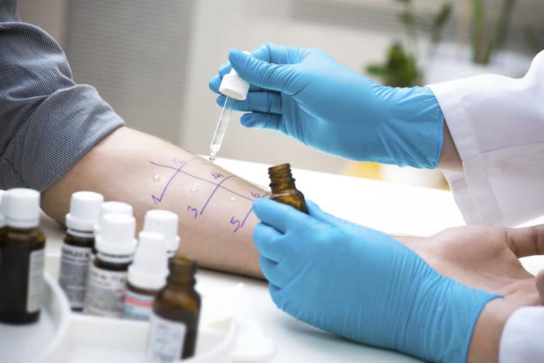 Doctor placing drops of allergens on a patients arm to test for allergies