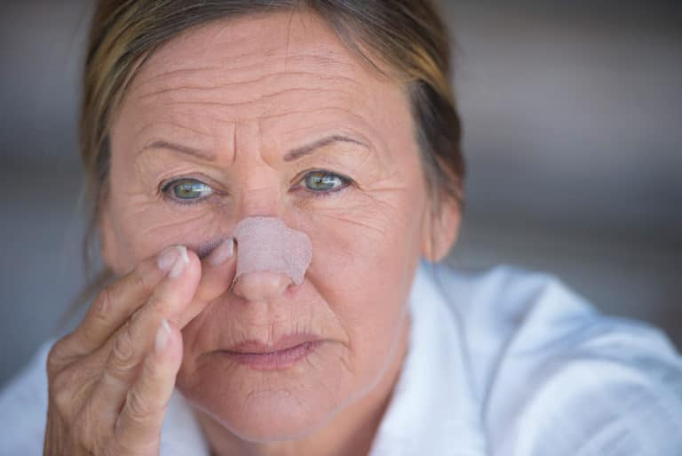 Woman with bandage on her nose